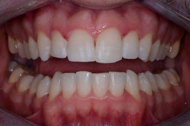 After Six Month Smiles Treatment - Dublin 4 Dentist