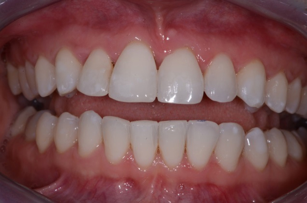 After Six Month Smiles Treatment - D4 Dentist