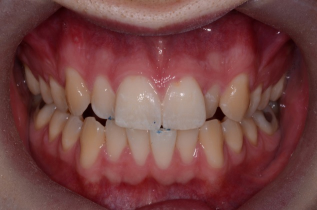 Before Six Month Smiles Treatment - Dublin 4 Dentist