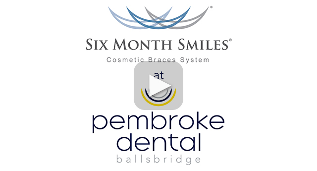Six Month Smiles at Dublin Dentist in Ballsbridge